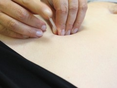 acupuntura-efp1-2014