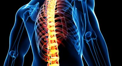 Alimentação pode ter relação com dores nas costas