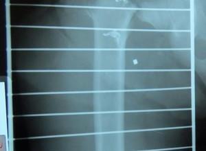 Fratura do quadril é osteoporose? Saiba porque o trauma é tão temido