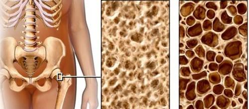 Osteoporose é uma das principais causas de fraturas no quadril