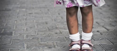 Fique de olho nas pernas das crianças: pernas tortas comprometem a mobilidade da criança