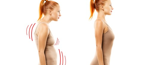 Qual o melhor tratamento para corrigir a postura? Pilates ou RPG?