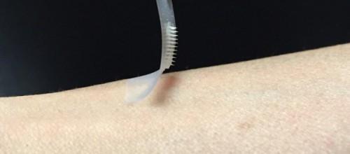 Cientistas desenvolvem adesivo de insulina que pode substituir injeções
