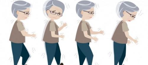 Exercícios de Pilates na Doença de Parkinson