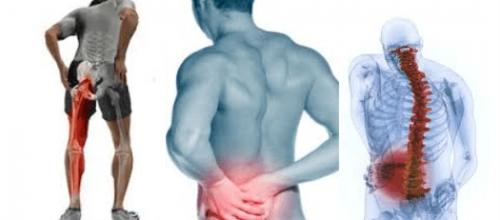 Dor e inflamação do nervo ciático