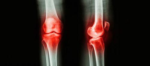 Pilates no tratamento da Artrose