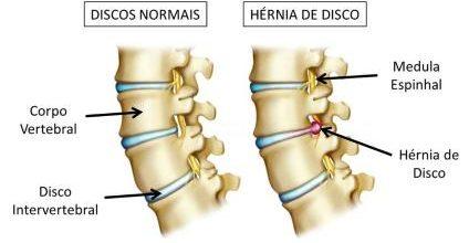 Hérnia de Disco – O que é, Causas, Sintomas e Tratamento