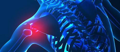 Síndrome do Impacto no ombro e a Fisioterapia