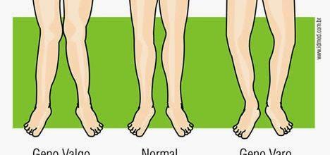Tratando joelho valgo e varo com Pilates