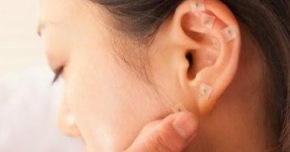 Entenda como funciona a acupuntura auricular