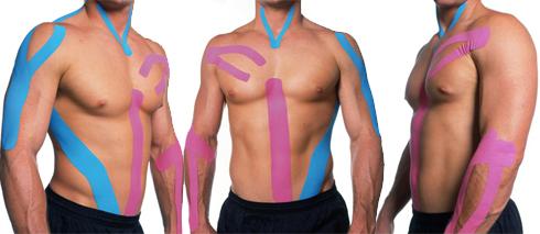 Kinesio Taping – ligadura elástica para alívio de dores musculares