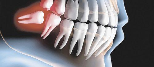 Curiosidades sobre o dente do siso