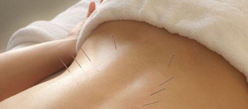Acupuntura no tratamento de dores nas costas