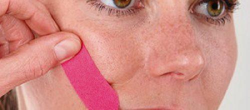 A importância da Fisioterapia na reabilitação da Paralisia Facial